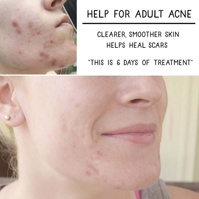 Help for Adult Acne
