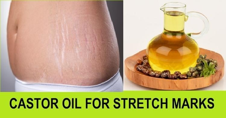 Castor Oil to Treat Stretch Marks